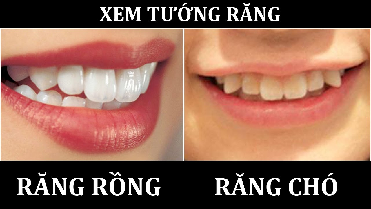 Theo quan niệm nhân tướng học thì hàm răng tiết lộ gì về tính cách của bạn?