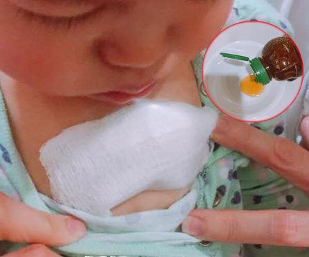 Miếng dán mật ong thần thánh giúp trị dứt ho cho con sau 3 ngày của mẹ Việt ở Mỹ