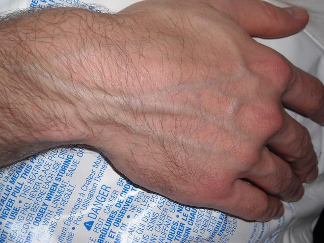 Phải làm gì khi thấy những gân xanh nổi trên người?