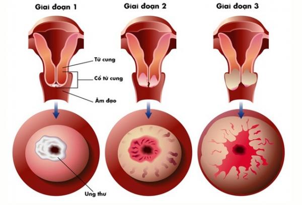 Viêm lộ tuyến cổ tử cung độ 1: Nguyên nhân, triệu chứng và cách điều trị