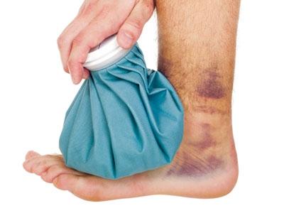 Mách bạn 5 phương pháp giảm đau cực nhanh cho người suy giãn tĩnh mạch chân