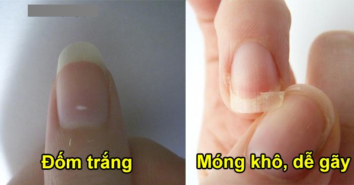 9 dấu hiệu ở móng chân, móng tay bạn nhất định phải đi khám nếu không muốn cơ thể mang bệnh